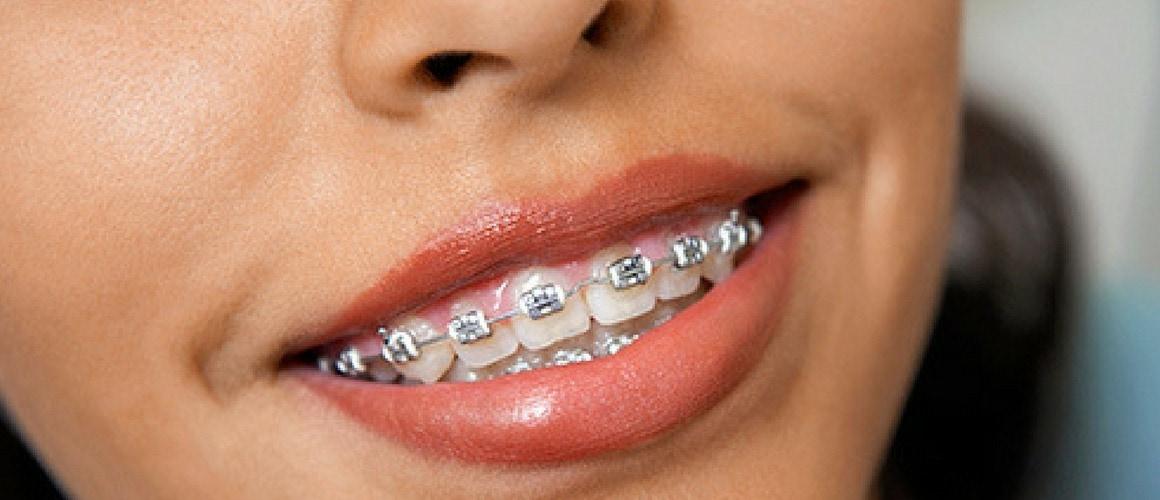 German Town Orthodontics Blog