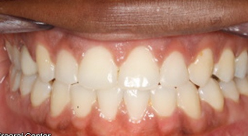 Spacing Interdisciplinary Treatment Treated With Braces And Composite Veneers After