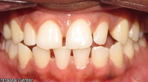 Spacing Interdisciplinary Treatment Treated With Braces And Composite Veneers-Before