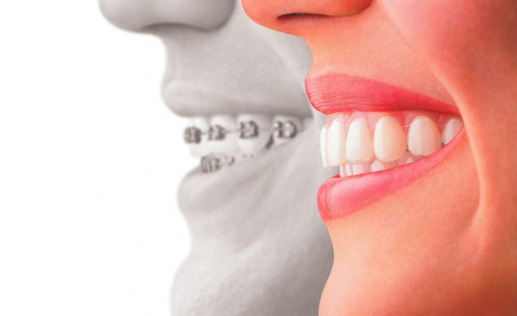 How Long Does Invisalign Take To Straighten Teeth ...
