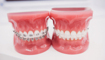 Traditional and Clear Braces